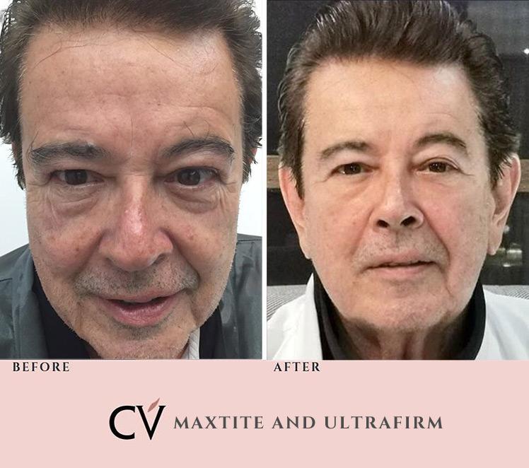 Eddie Gutierrez Maxtite Ultrafirm